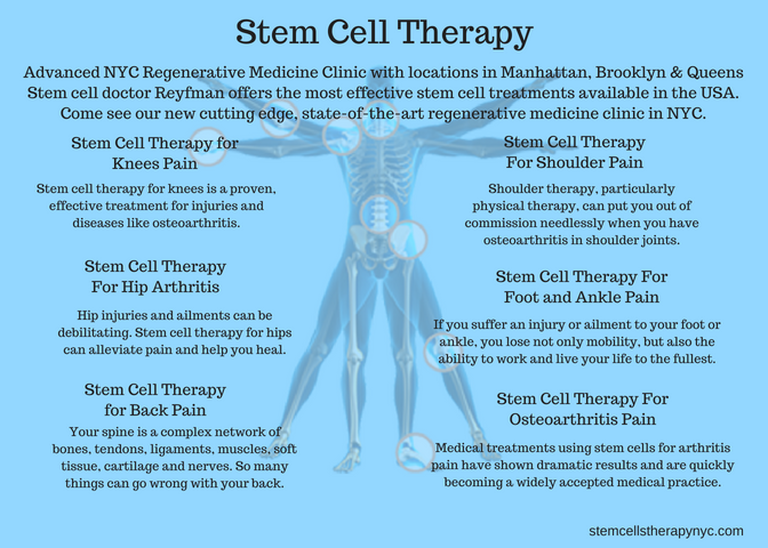 Photos Stem Cell Therapy