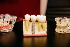 EMERGENCY DENTISTRY IN HOUSTON, TX