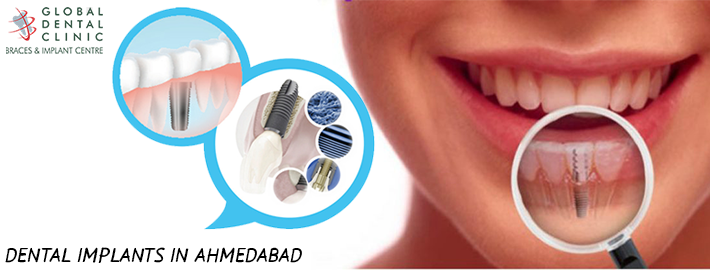 Need the treatment of dental implant in Ahmadabad for missing tooth or teeth