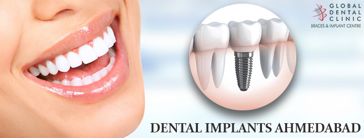 An Impeccable Guide For People Who Require Dental Implantation