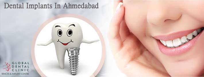 Everything You Ought To Know About Dental Implantation Services