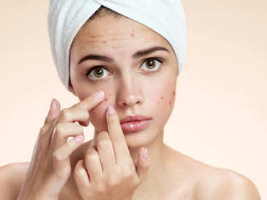5 Most Common Triggers of Post-Pill Acne