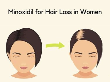 Minoxidil for Hair Loss in Women - How effective is it?